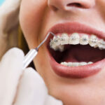 Diş telinin alternatifi var mıdır uzmanlar açıklıyor!